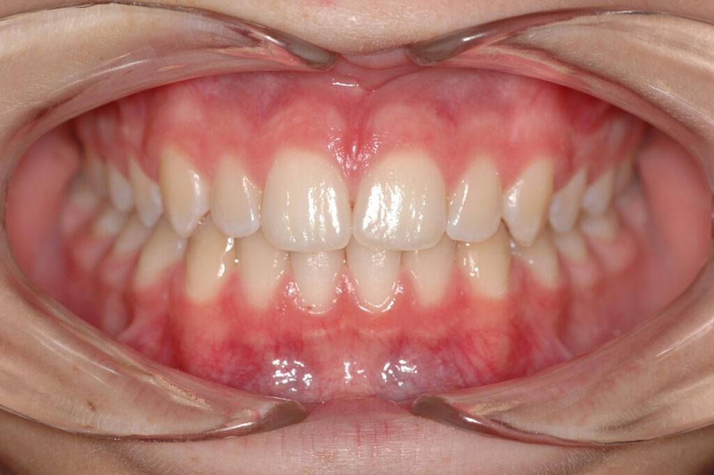 denti decidui dopo apparecchio