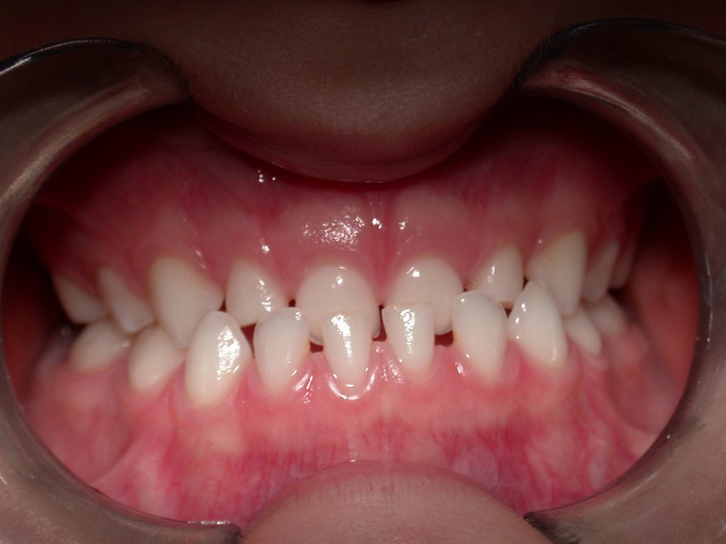denti decidui